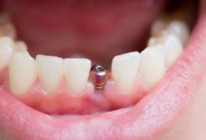 Частный опыт имплантации зубов