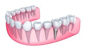 ОДин зубной имплант