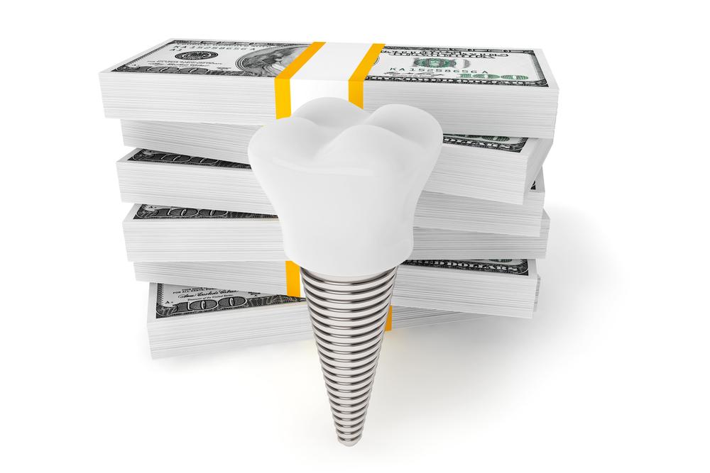 Цена зубного импланта