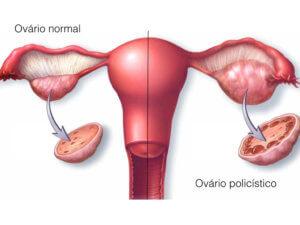 Поликистозные яичники