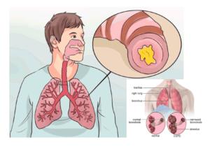 Лечение бронхита Аугментином
