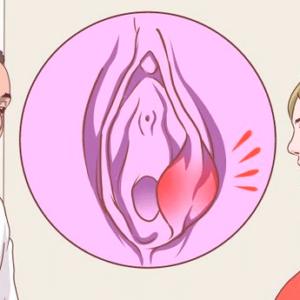 Симптомы воспаления бартолиновой железы - клиническая картина