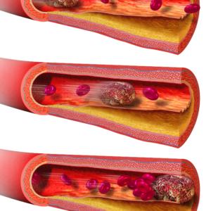 Симптомы отрыва тромба, лечение и предупредительные меры