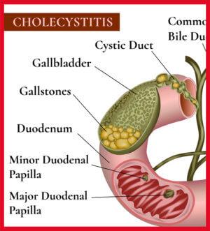 Холецистит является противопоказанием