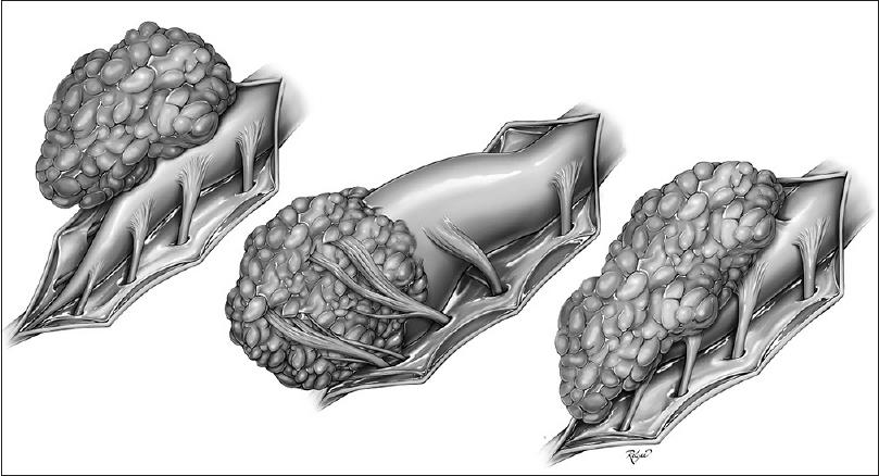 3 вида липомы