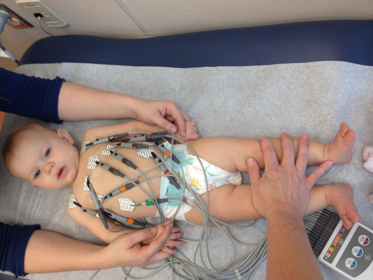 Проведение ЭКГ младенцев