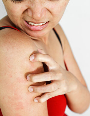 Аллергическая реакция на витамин