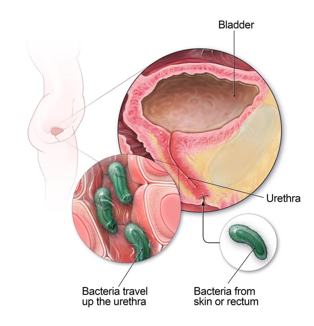 Наличие бактерий в мочеточнике