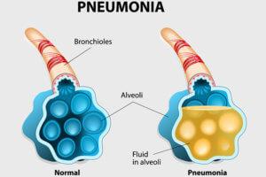 Возможно перерождение в пневмонию
