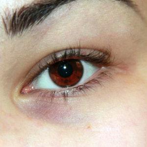 Бадяга от синяков под глазами – механизм действия и отзывы пациентов