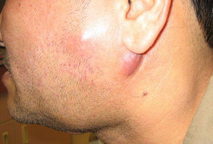 Увеличение лимфатических узлов на теле