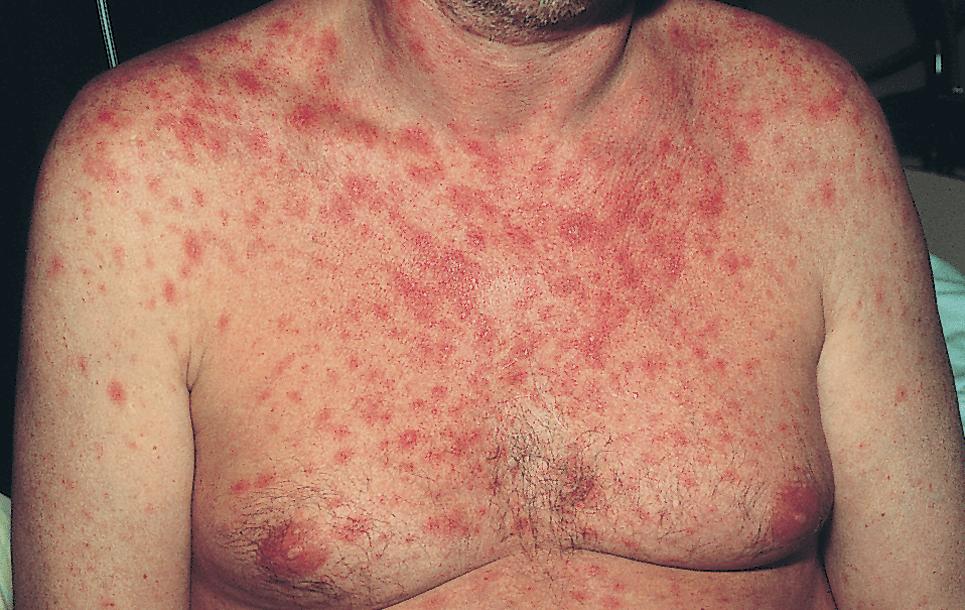 Активная сыпь по всему телу