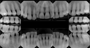 Рентген десен