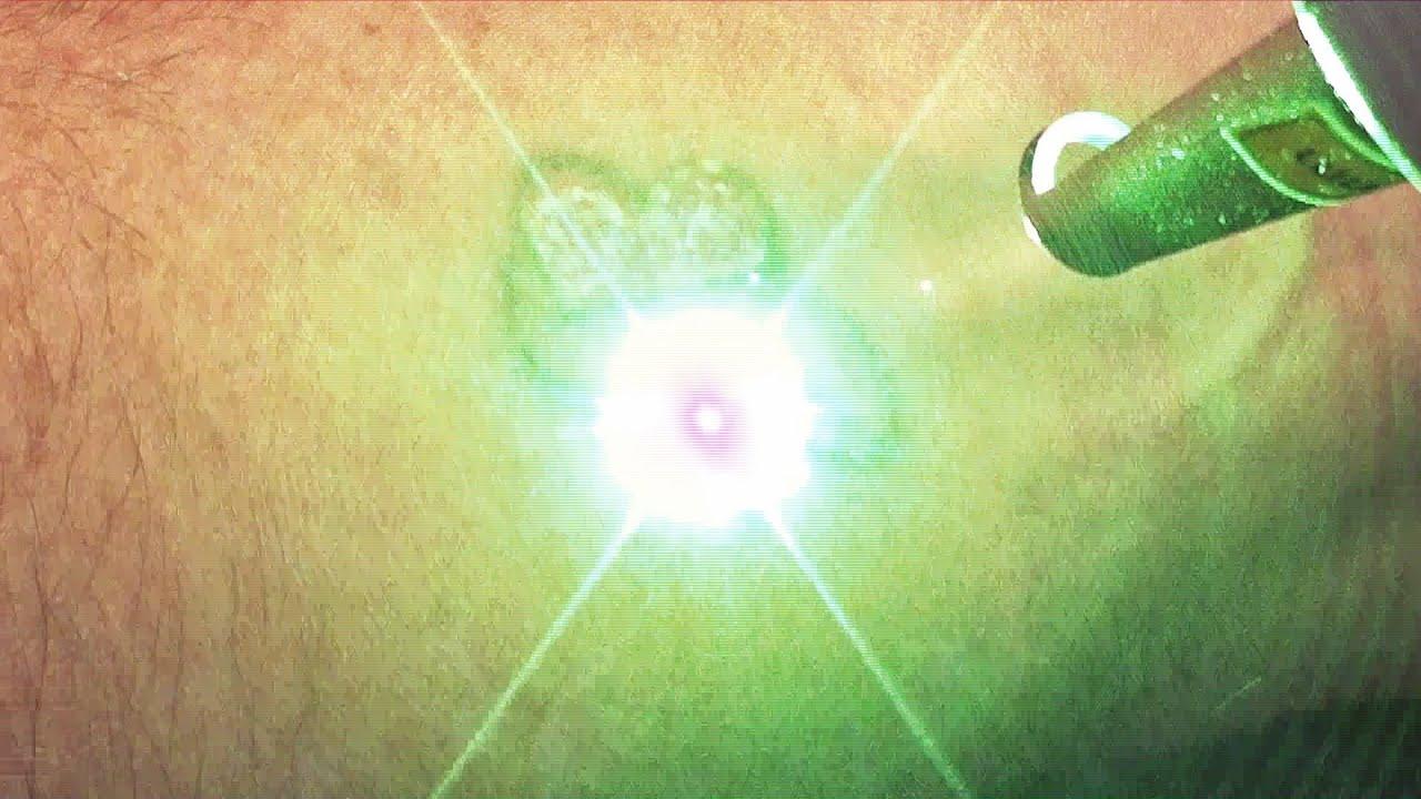 Лазерное удаление