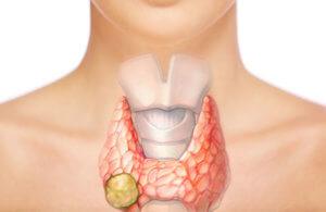 Отклонения в работе щитовидной железы