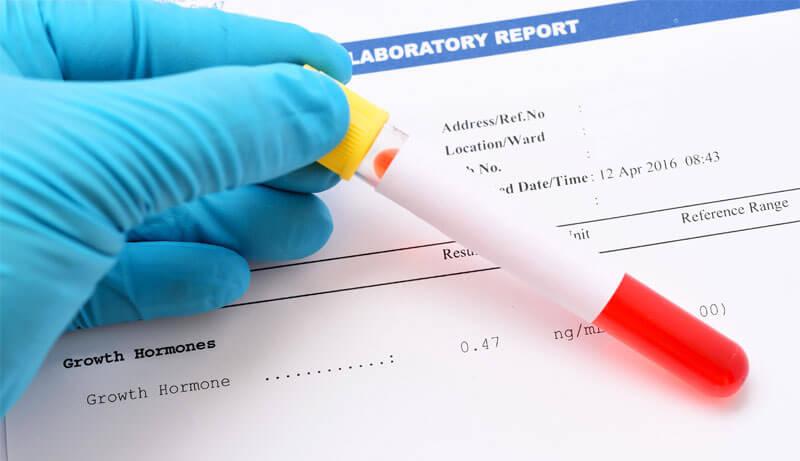 Результаты анализа крови на гормоны