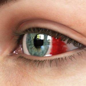 Кровоизлияния в глаз