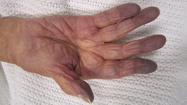 Синюшный цвет рук