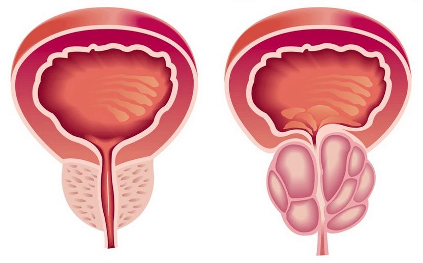 Аденома лечение простатит как можно узнать простатит есть или нет
