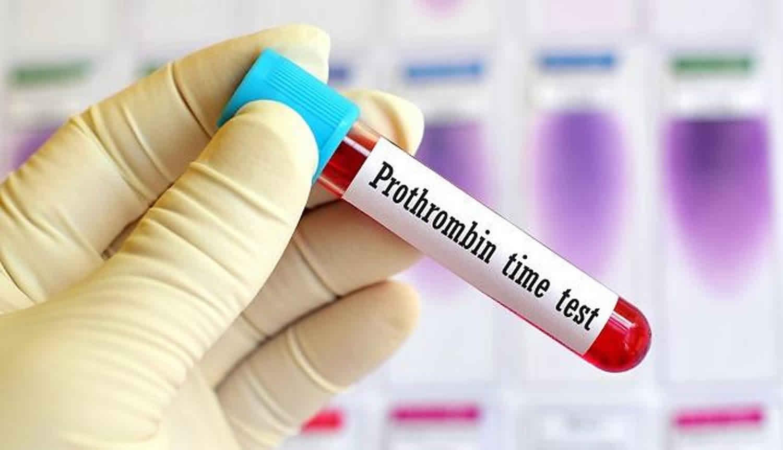 Анализ на протромбин