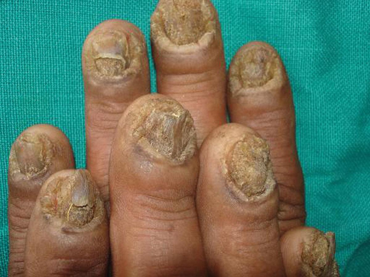 Онихомикоз на пальцах рук