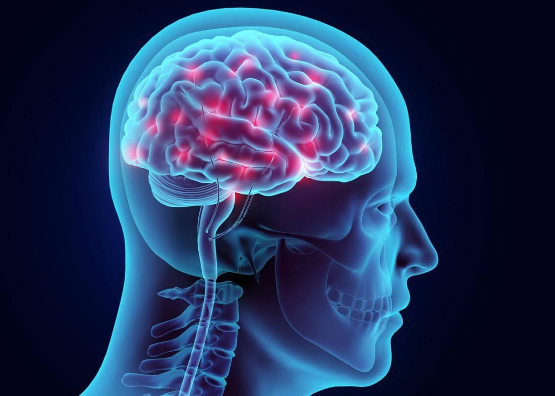Поражение головного мозга