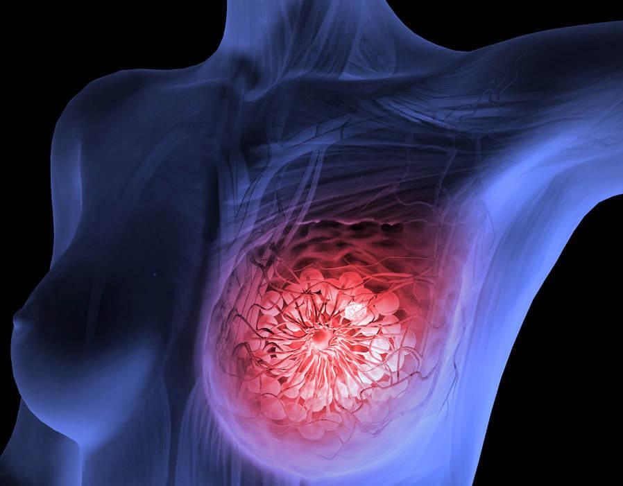 Способы лечения фиброза