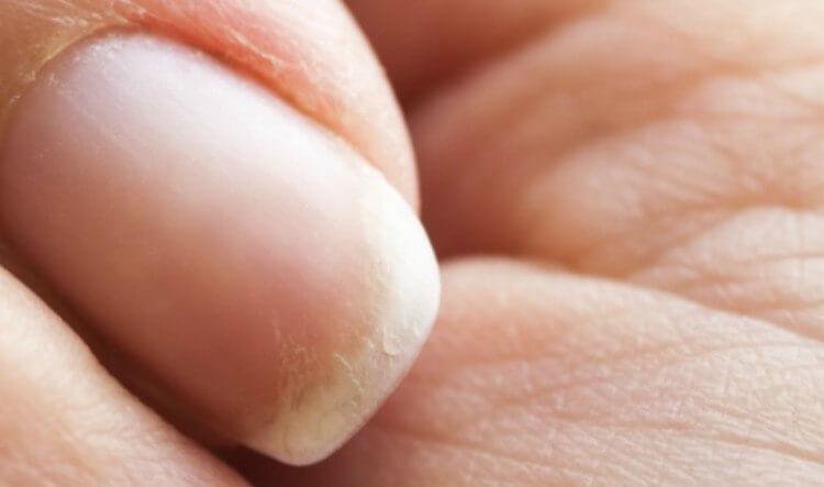 Слабые ломкие ногти