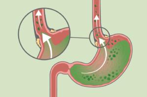 Дизбактериоз кишечника