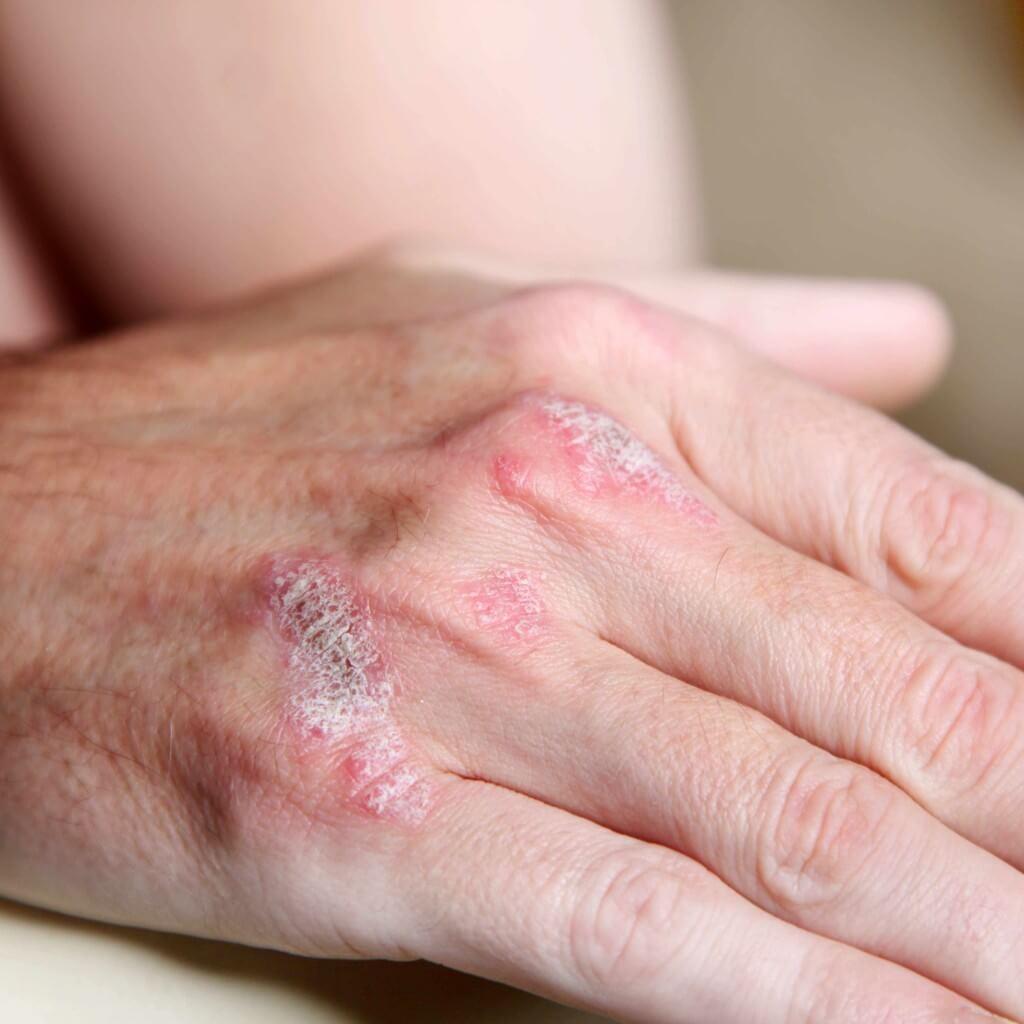 Как избавиться от сухой кожи на пальцах рук – решение проблемы