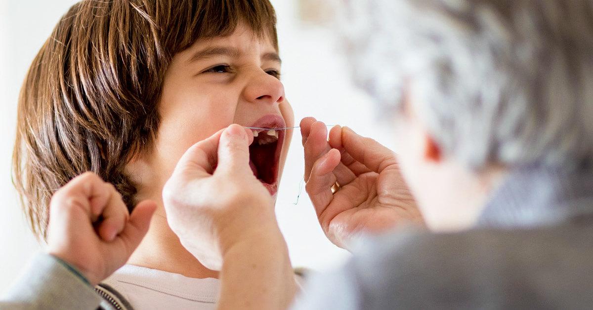 Шатаются зубы у детей