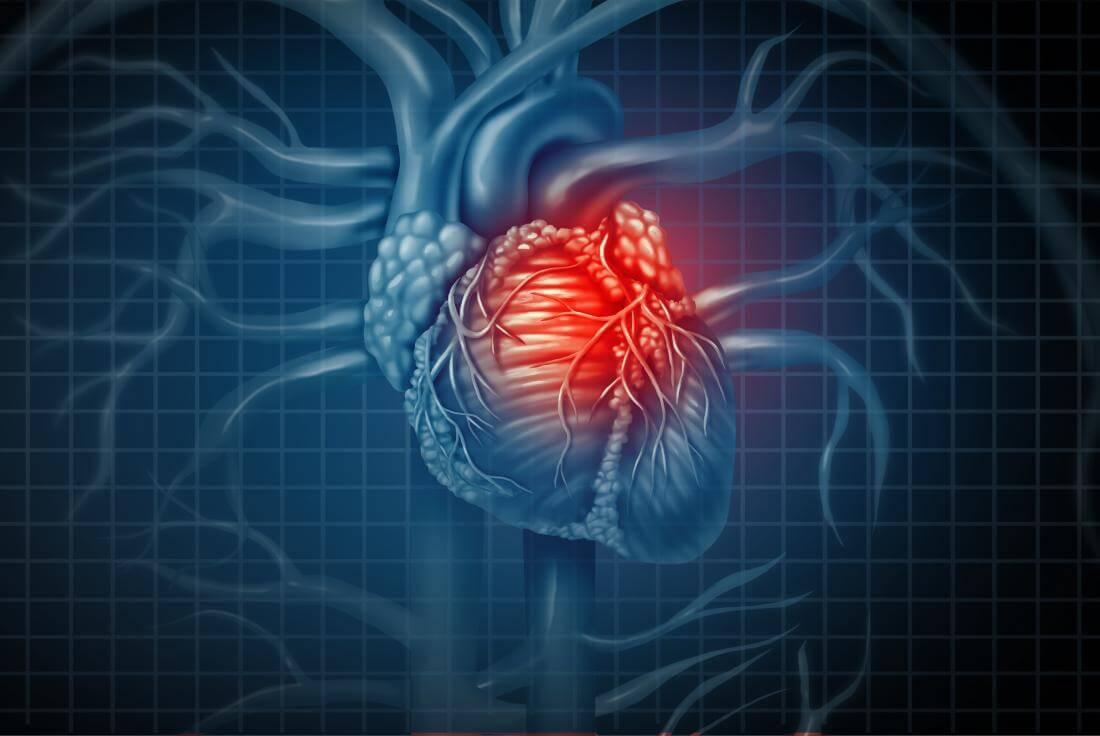 Риск появления инфаркта