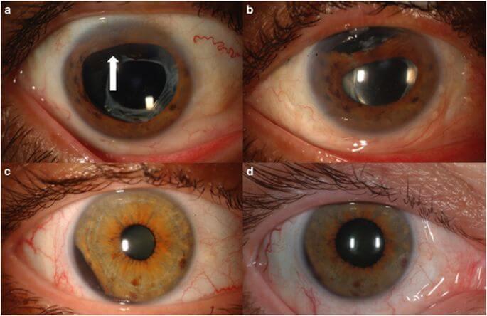 Окулярная меланома