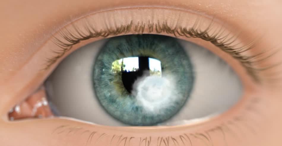 Язвенное поражение глаза