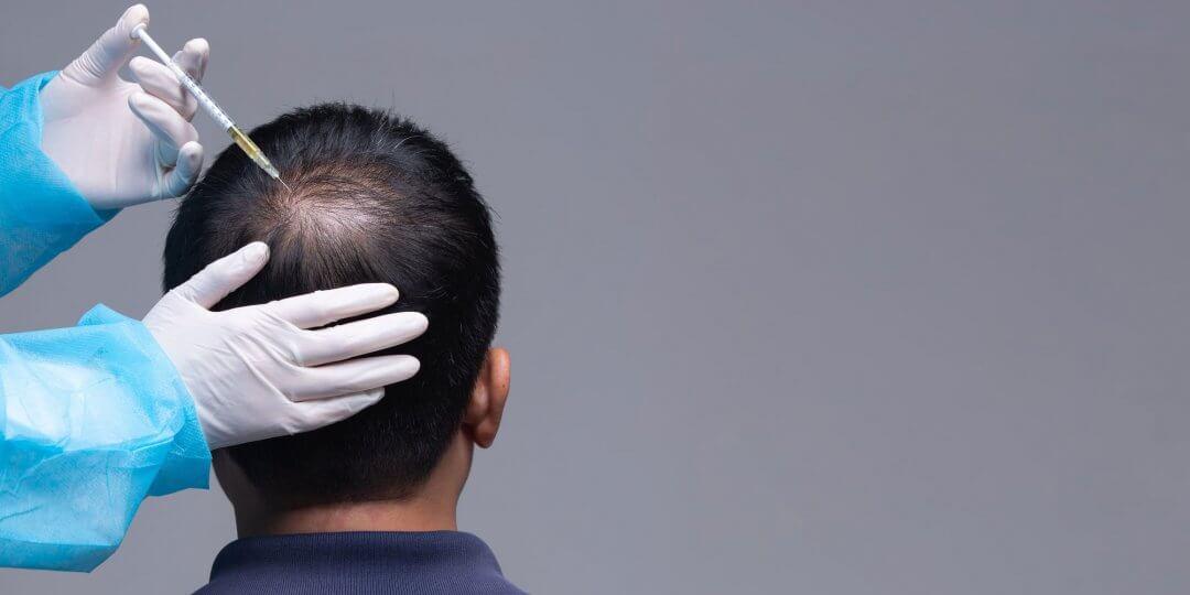Стимуляция волос