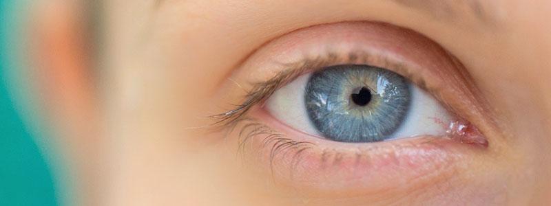 Кератит глаз