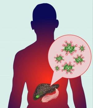 Поражение печени гепатитом