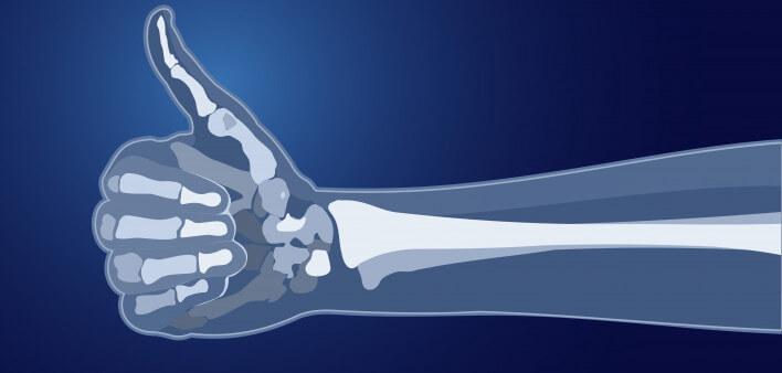 Здоровые кости