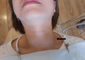 Обследование железы