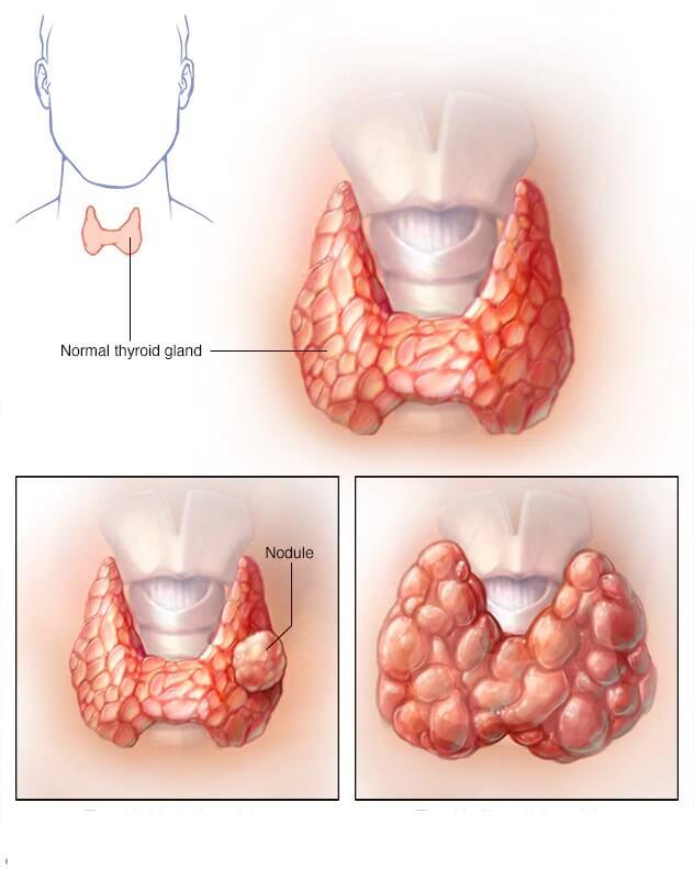 Изменения в щитовидной железе